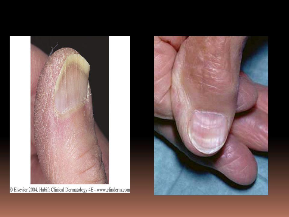 Figure 25-46 Spoon nails (koilonychia)