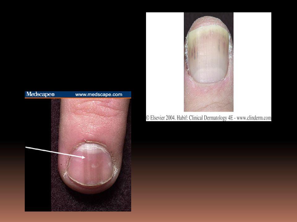 Unn Figure 25-21 Splinter hemorrhages, p. 865