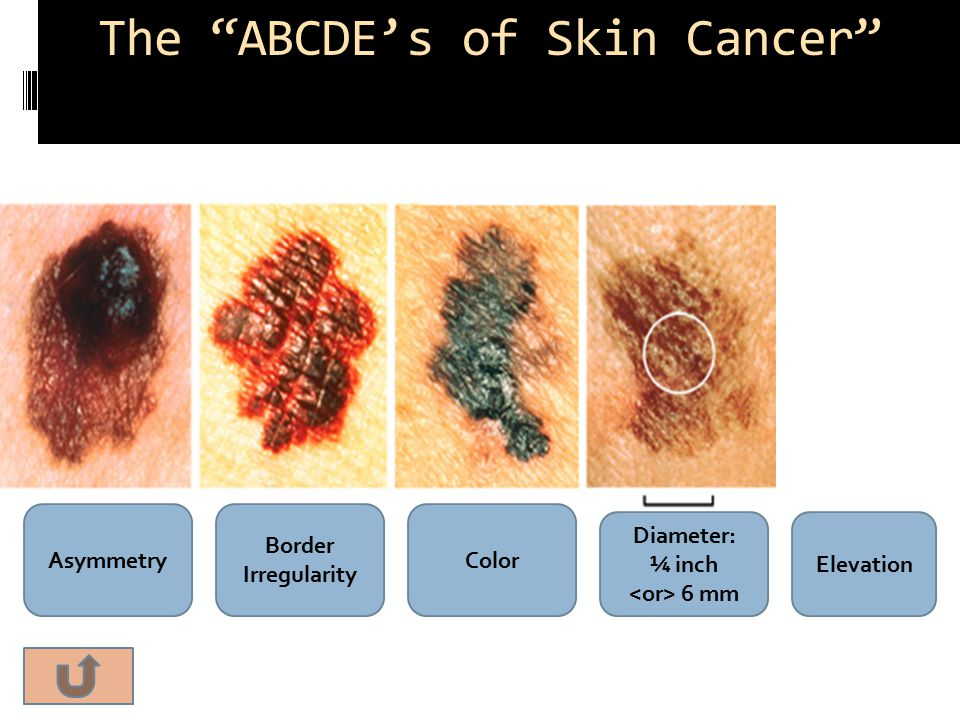 The ABCDE's of Skin Cancer