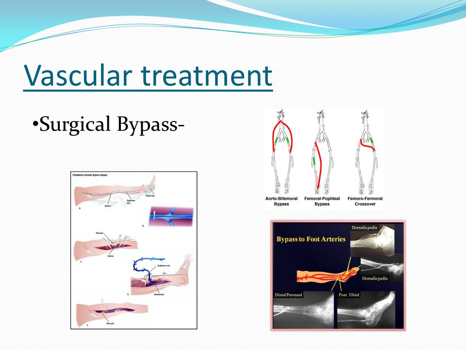 Vascular treatment Surgical Bypass-