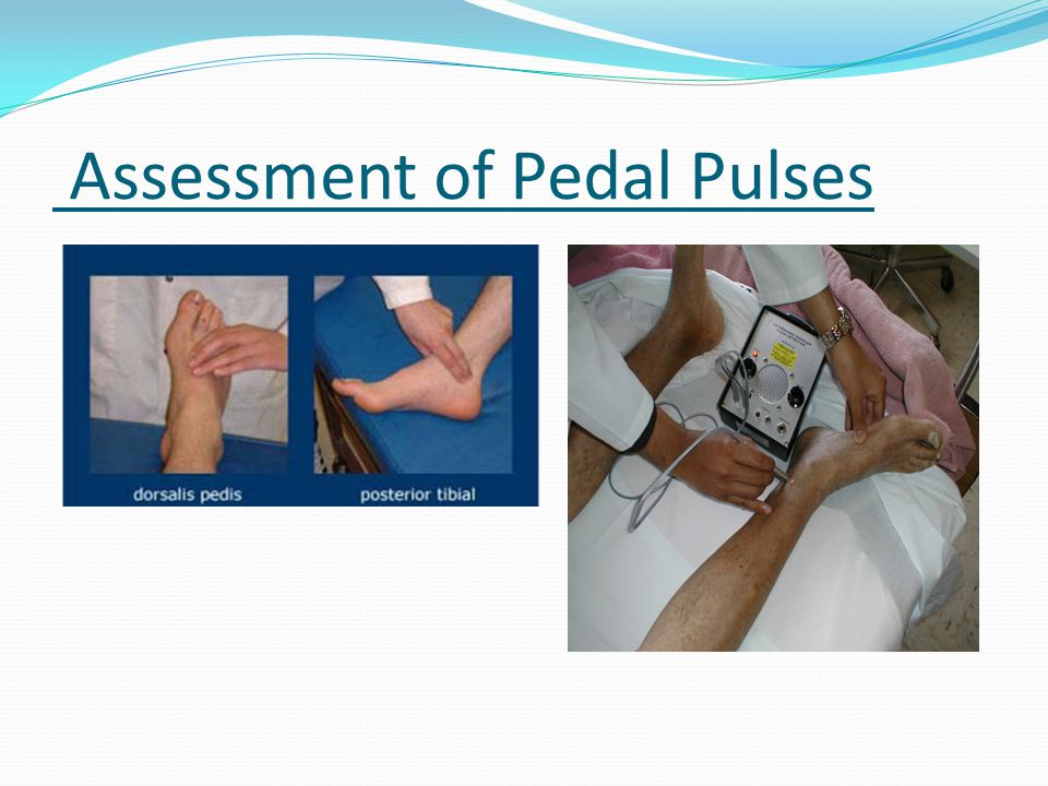 Assessment of Pedal Pulses