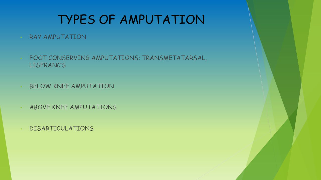 TYPES OF AMPUTATION RAY AMPUTATION