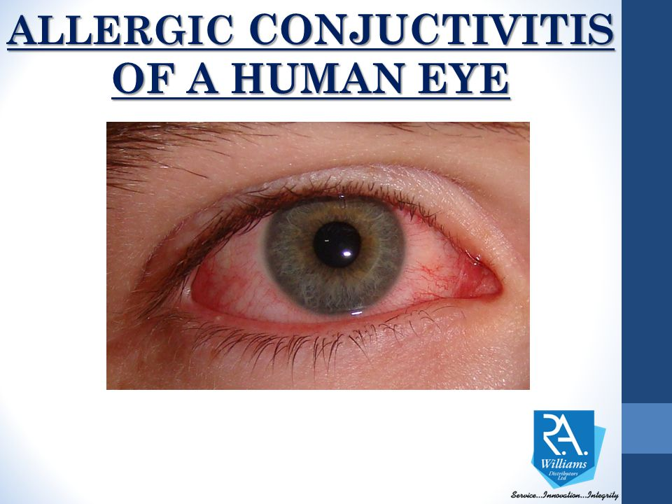 ALLERGIC CONJUCTIVITIS