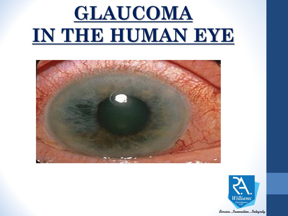 GLAUCOMA IN THE HUMAN EYE