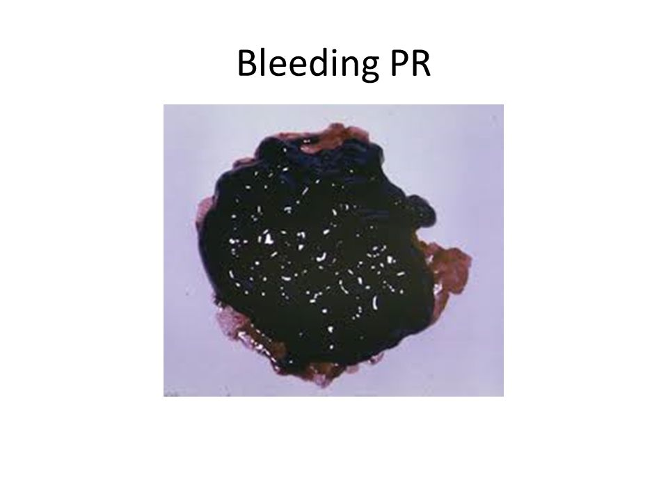 Bleeding PR