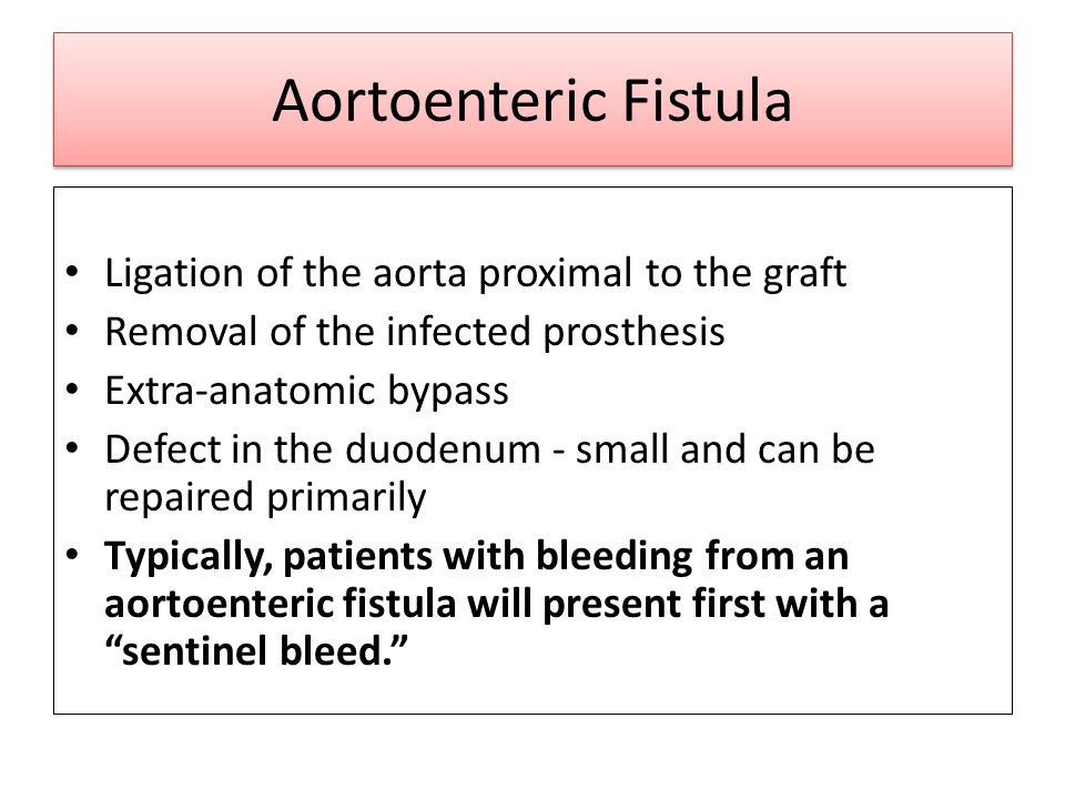 Aortoenteric Fistula Ligation of the aorta proximal to the graft