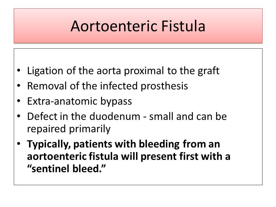 Aortoenteric Fistula Ligation of the aorta proximal to the graft