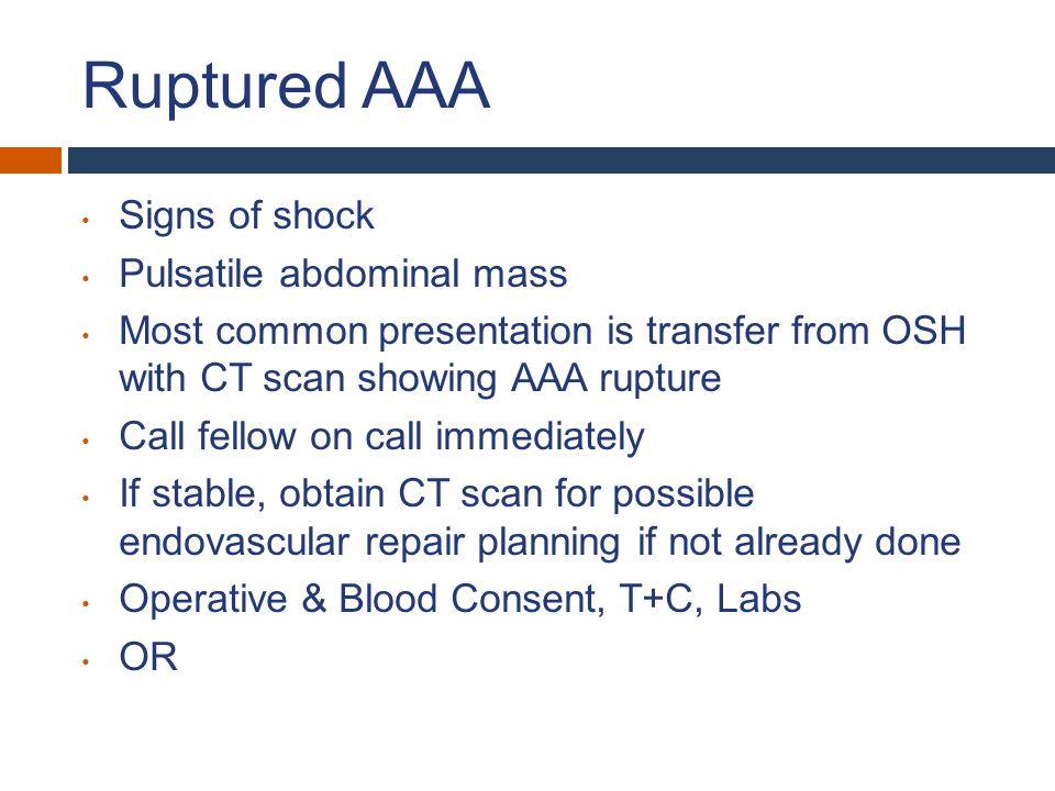 Ruptured AAA Signs of shock Pulsatile abdominal mass