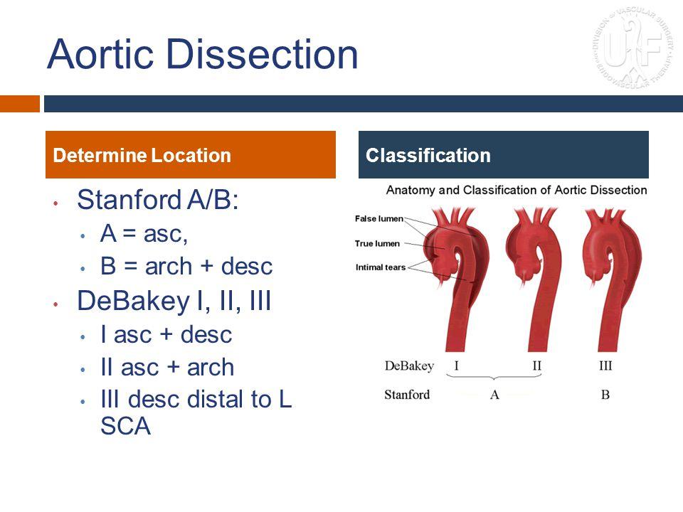 Aortic Dissection Stanford A/B: DeBakey I, II, III A = asc,
