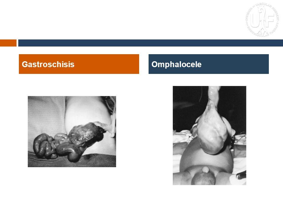 Gastroschisis Omphalocele