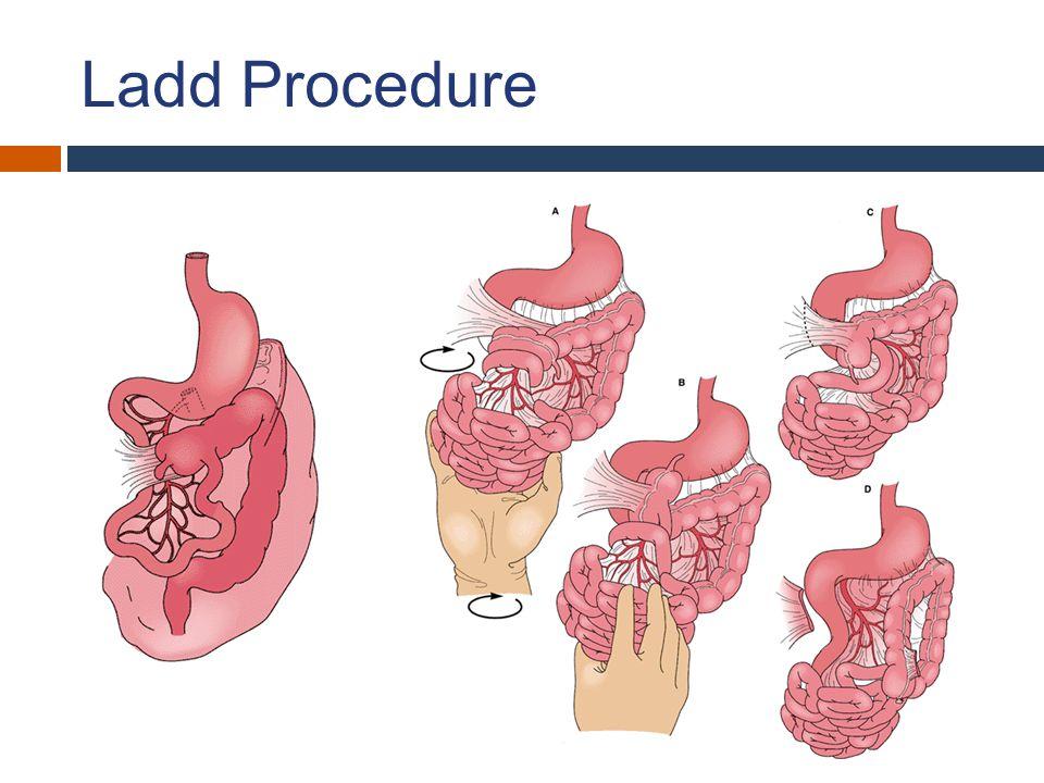 Ladd Procedure