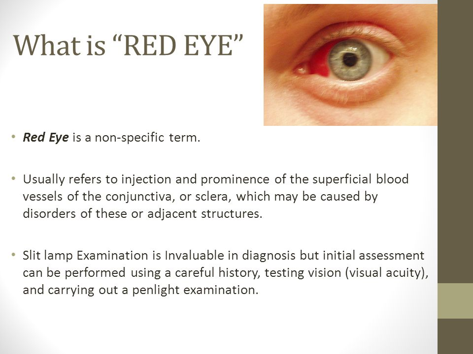What is RED EYE Red Eye is a non-specific term.