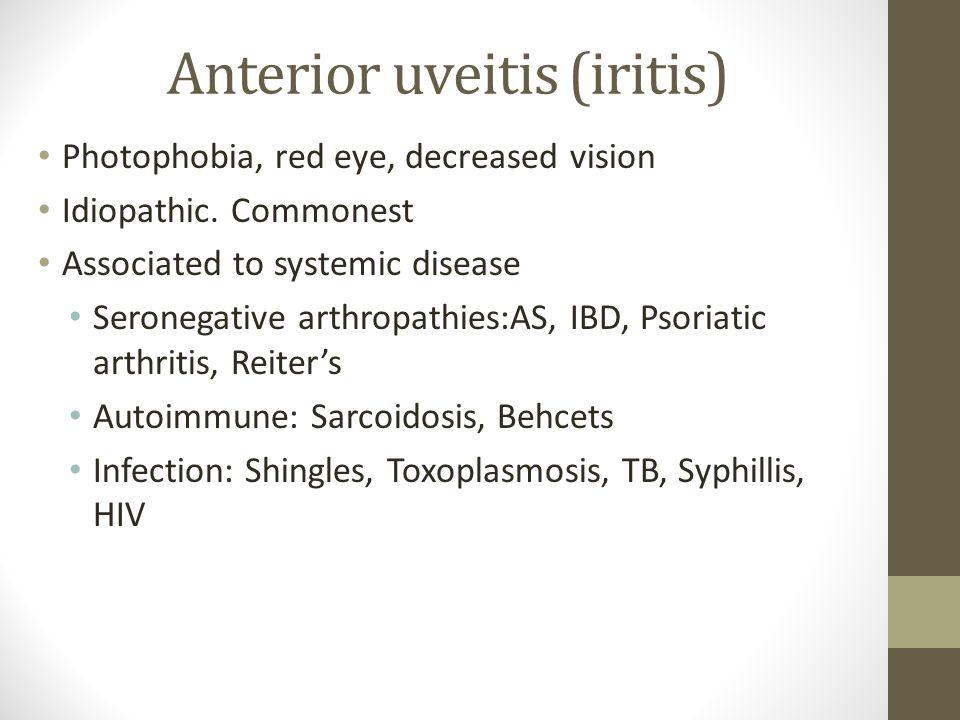 Anterior uveitis (iritis)
