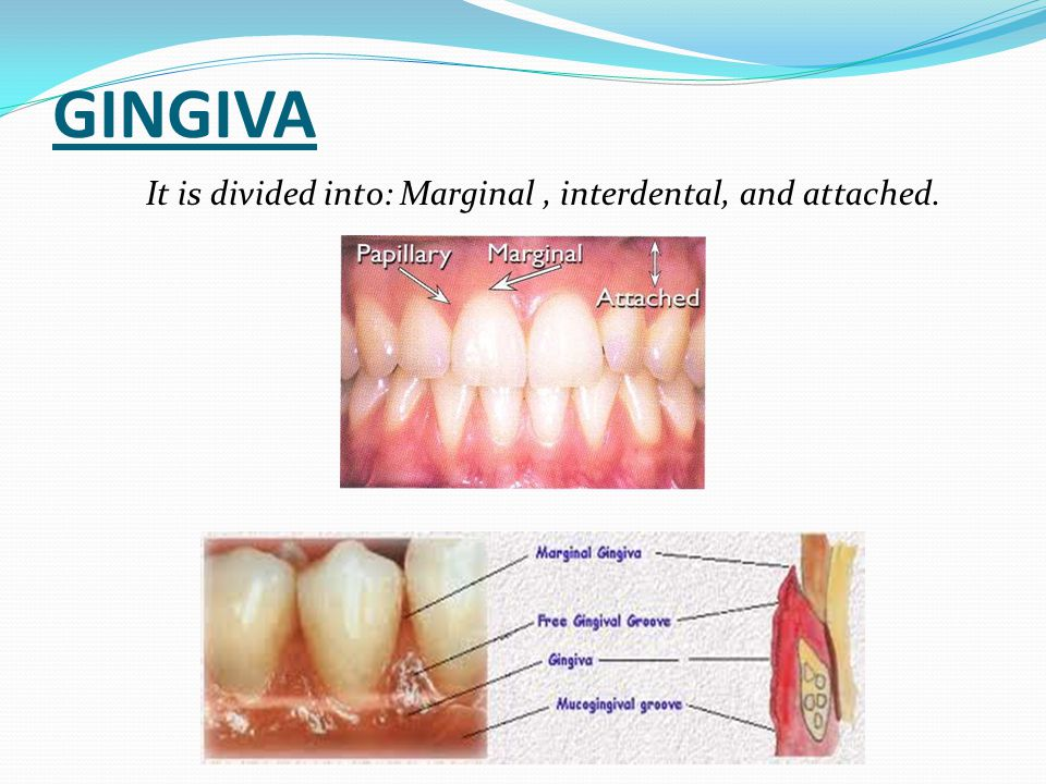 GINGIVA It is divided into: Marginal , interdental, and attached.