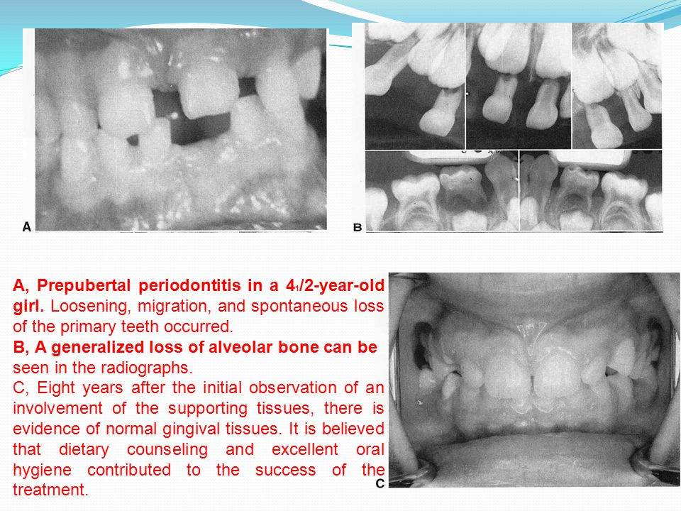 A, Prepubertal periodontitis in a 41/2-year-old girl