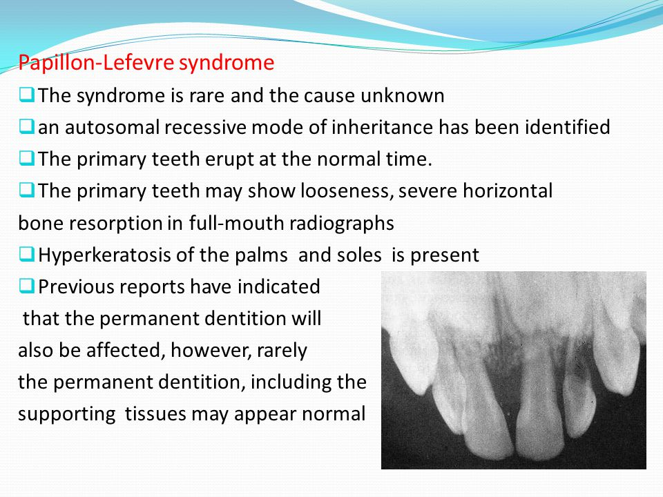 Papillon-Lefevre syndrome