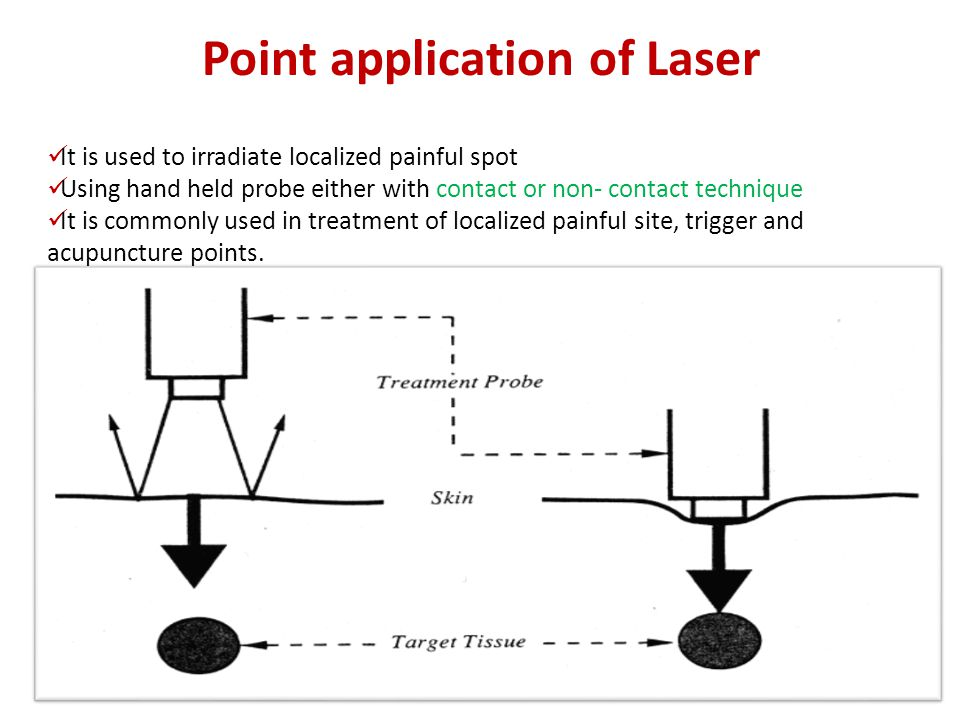 Point application of Laser