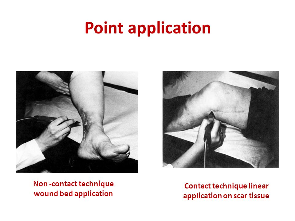 Point application Non -contact technique wound bed application