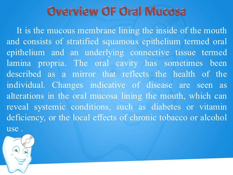 Overview OF Oral Mucosa