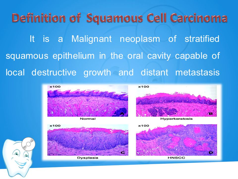 Definition of Squamous Cell Carcinoma