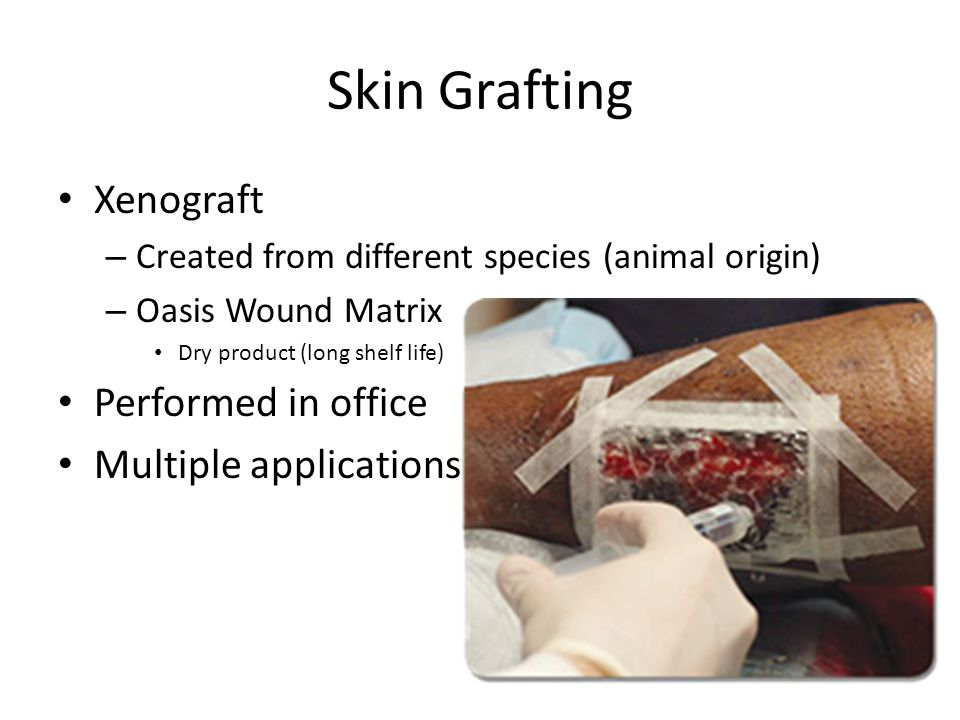 Skin Grafting Xenograft Performed in office Multiple applications