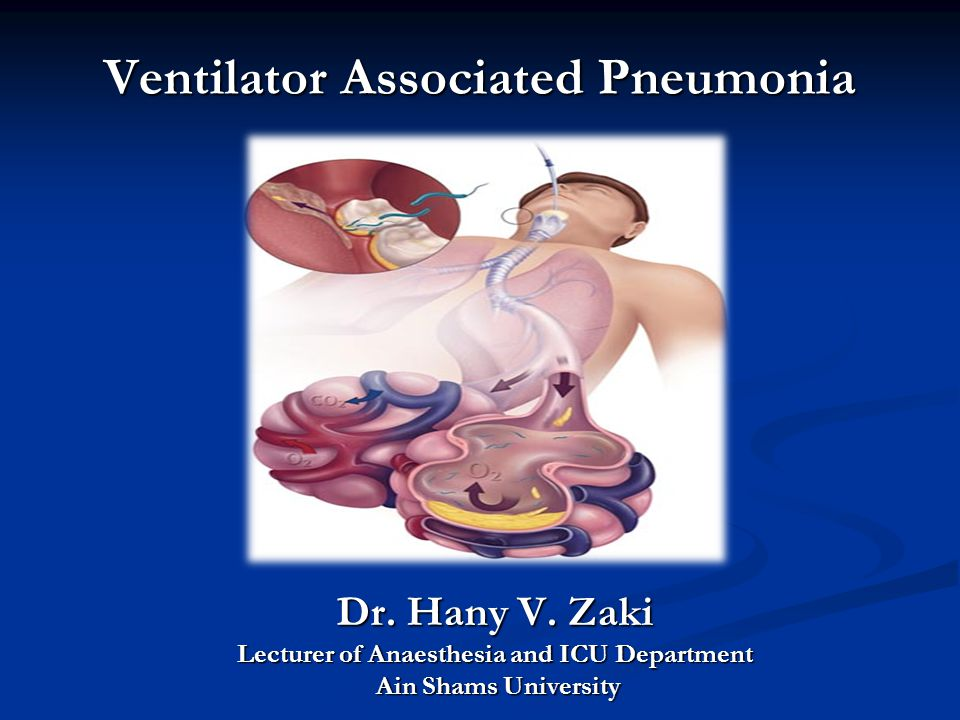 Ventilator Associated Pneumonia