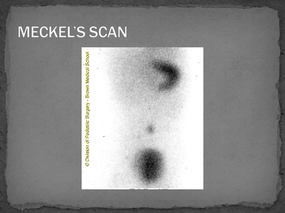 MECKEL'S SCAN
