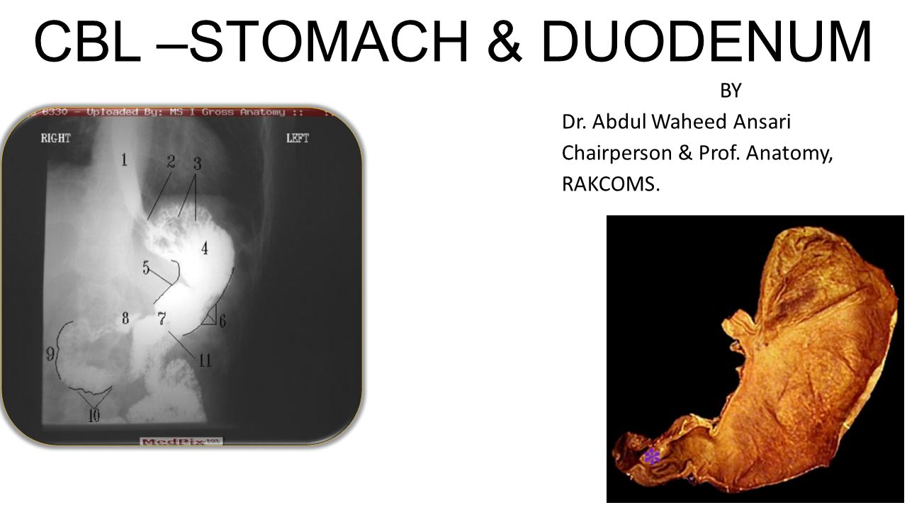 CBL –STOMACH & DUODENUM