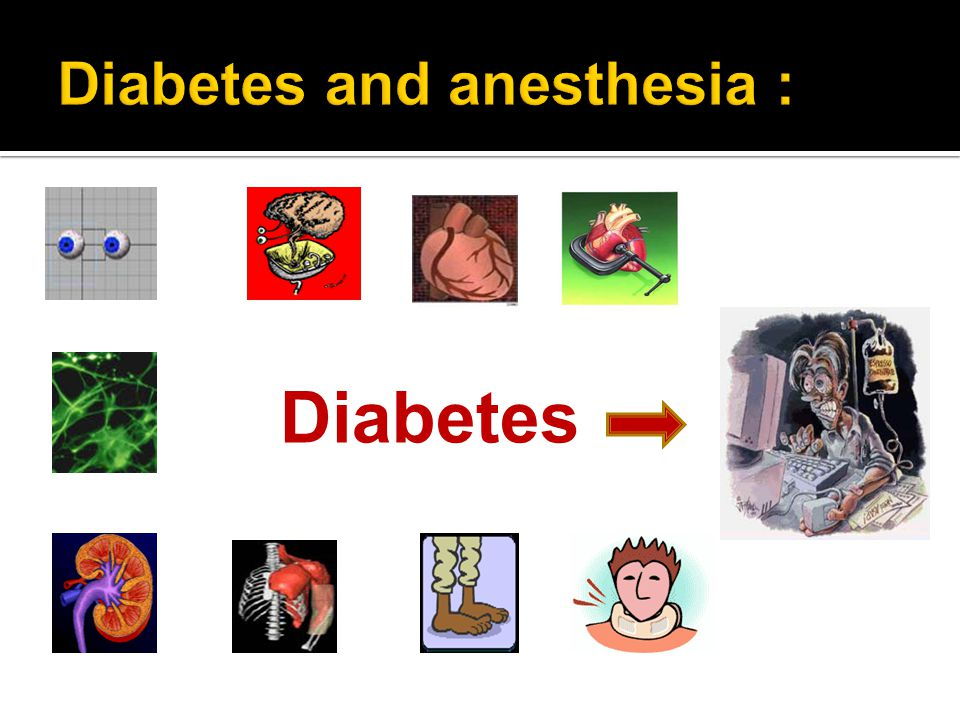 Diabetes and anesthesia :