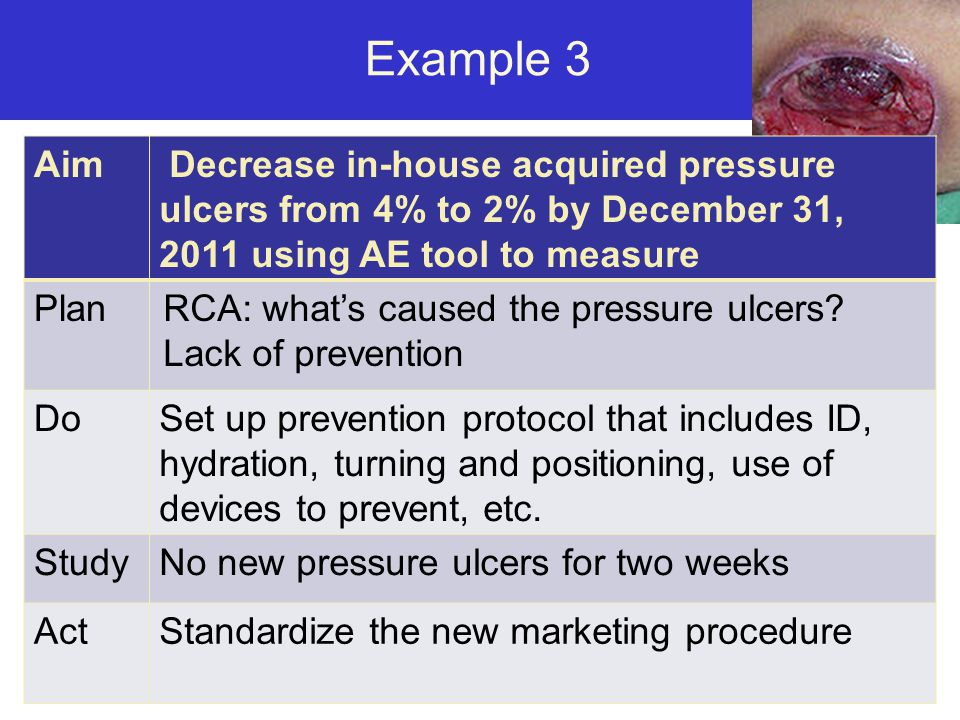 Example 3 Aim. Decrease in-house acquired pressure ulcers from 4% to 2% by December 31, 2011 using AE tool to measure.