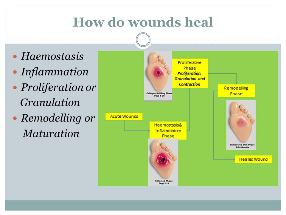 How do wounds heal Haemostasis Inflammation Proliferation or