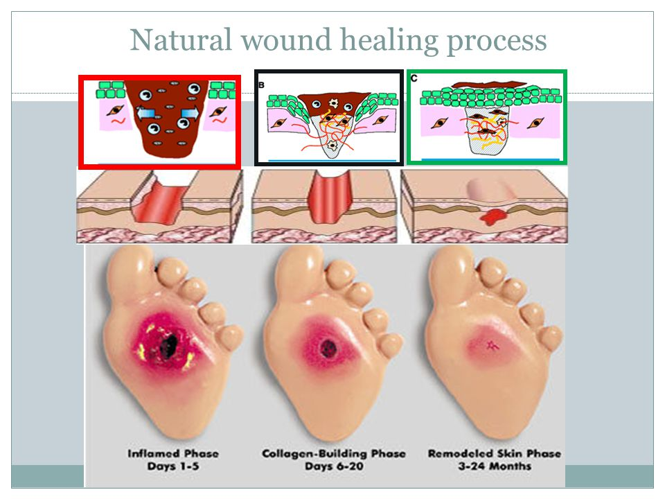 Natural wound healing process