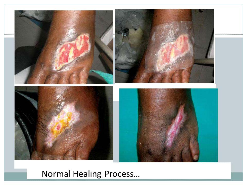 Normal Healing Process…