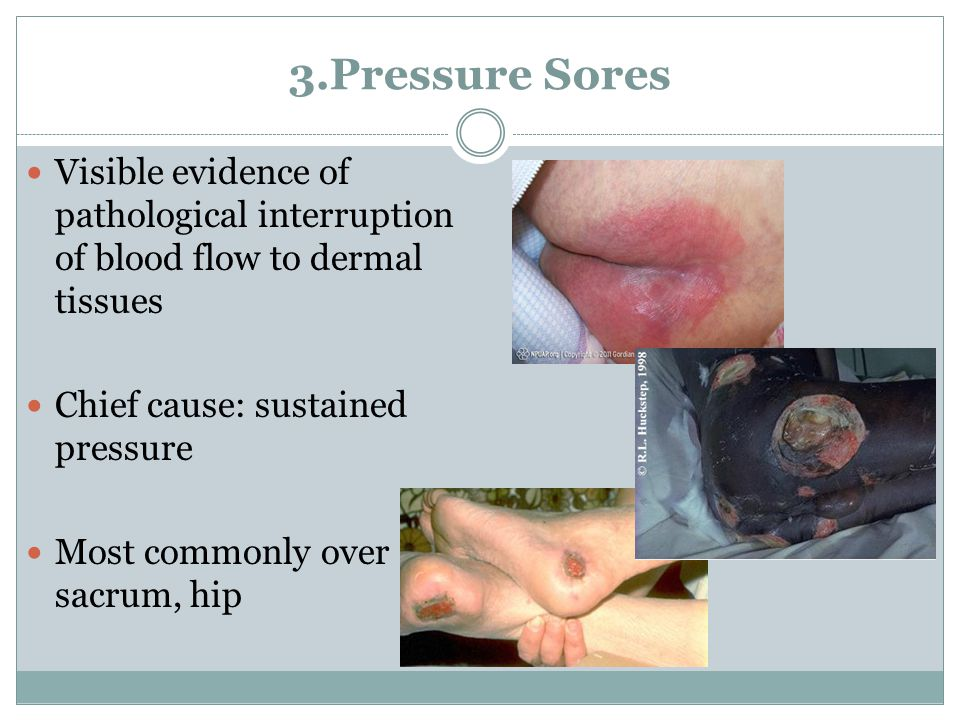 3.Pressure Sores Visible evidence of pathological interruption of blood flow to dermal tissues. Chief cause: sustained pressure.