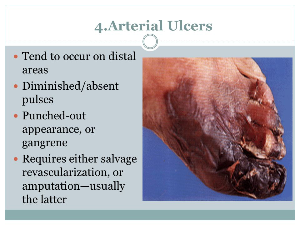 4.Arterial Ulcers Tend to occur on distal areas