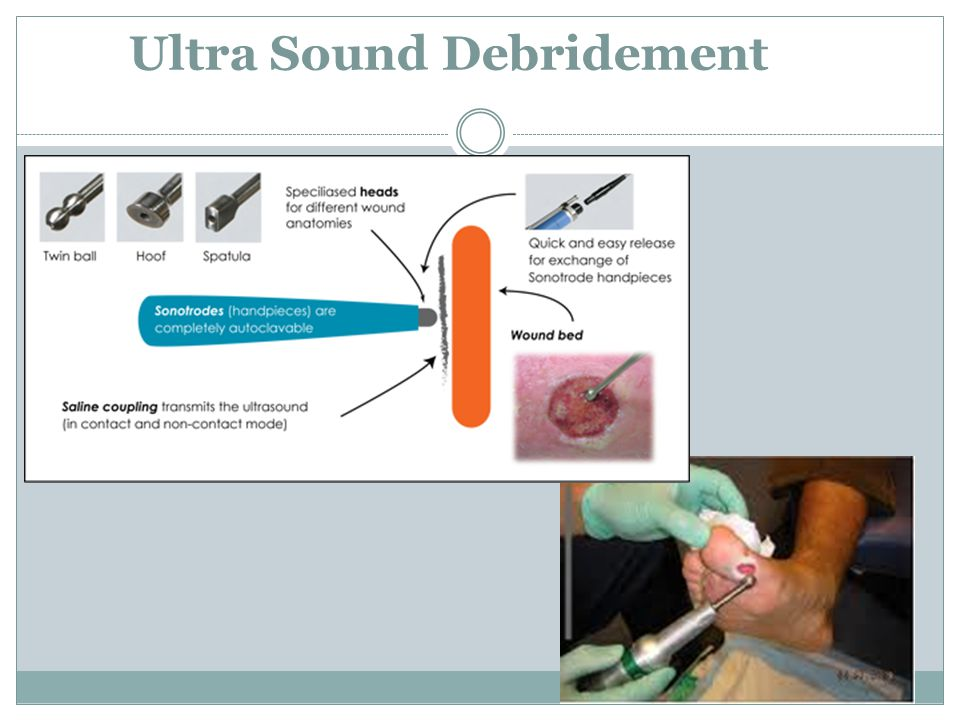 Ultra Sound Debridement
