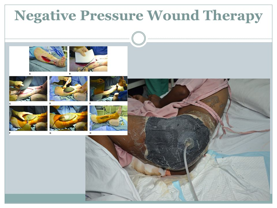 Negative Pressure Wound Therapy