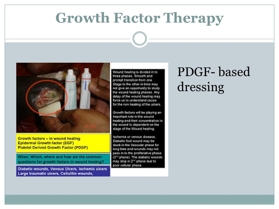 Growth Factor Therapy PDGF- based dressing