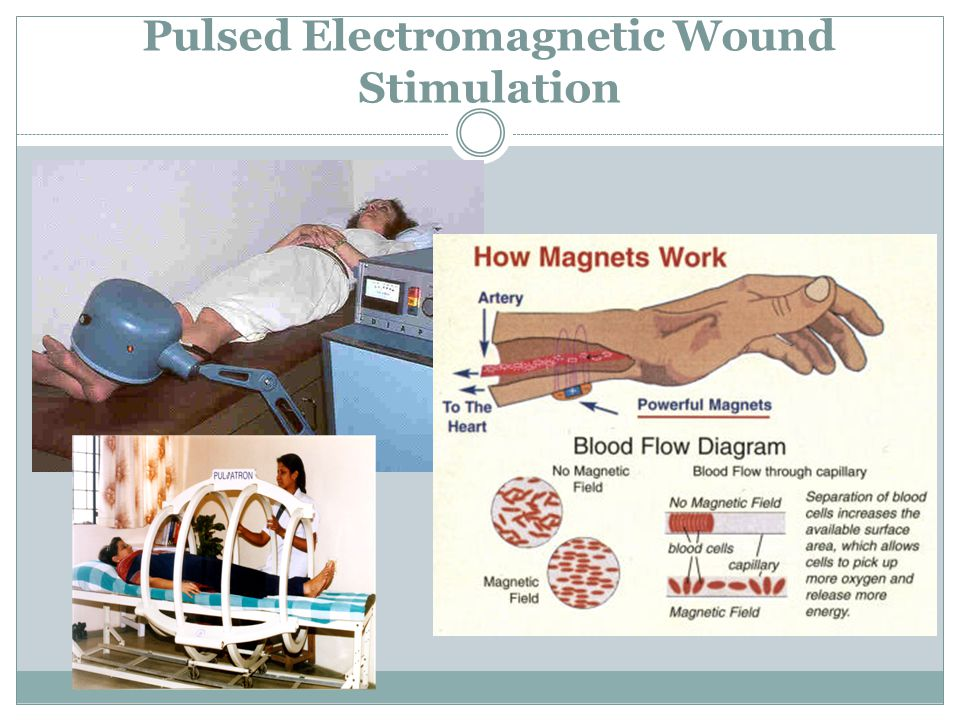 Pulsed Electromagnetic Wound Stimulation