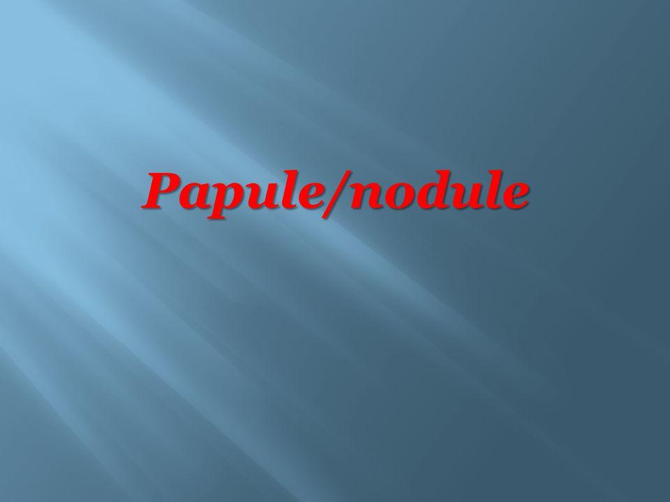 Papule/nodule