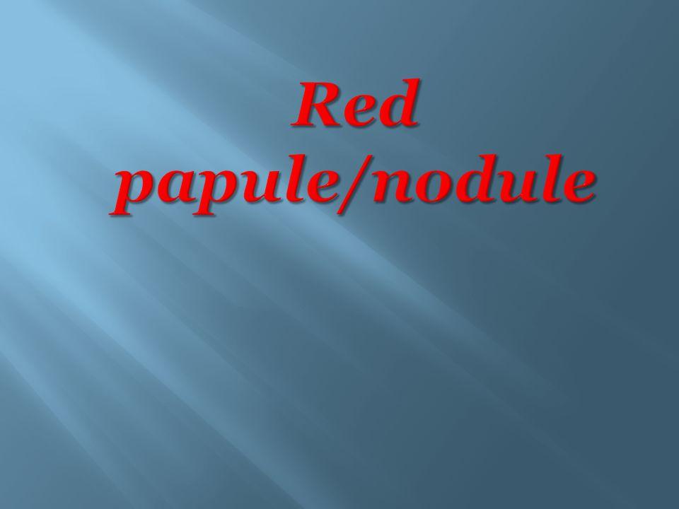 Red papule/nodule