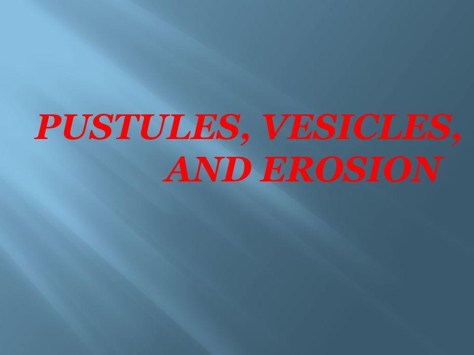 PUSTULES, VESICLES, AND EROSION