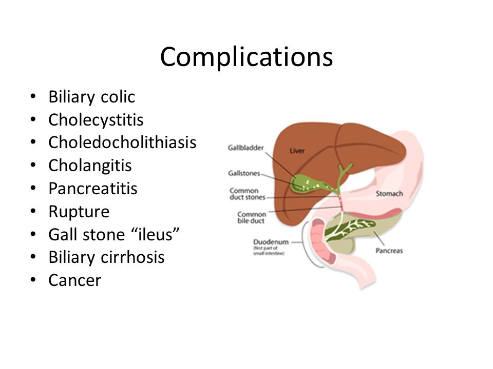 Complications Biliary colic Cholecystitis Choledocholithiasis