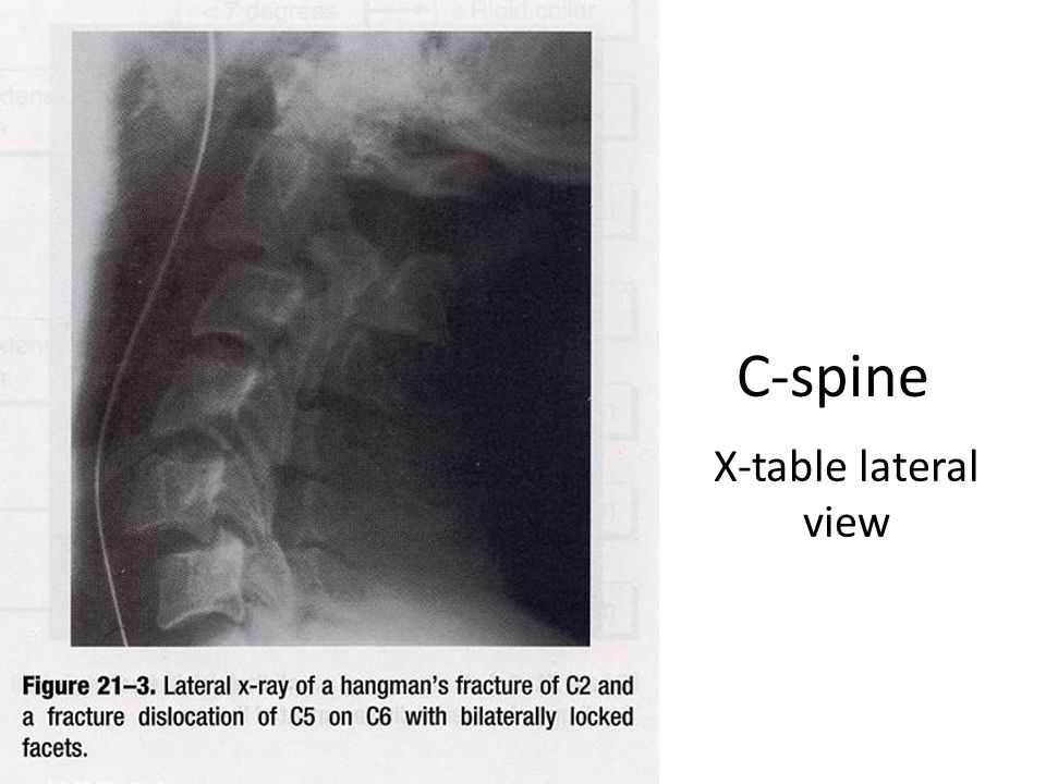 C-spine X-table lateral view