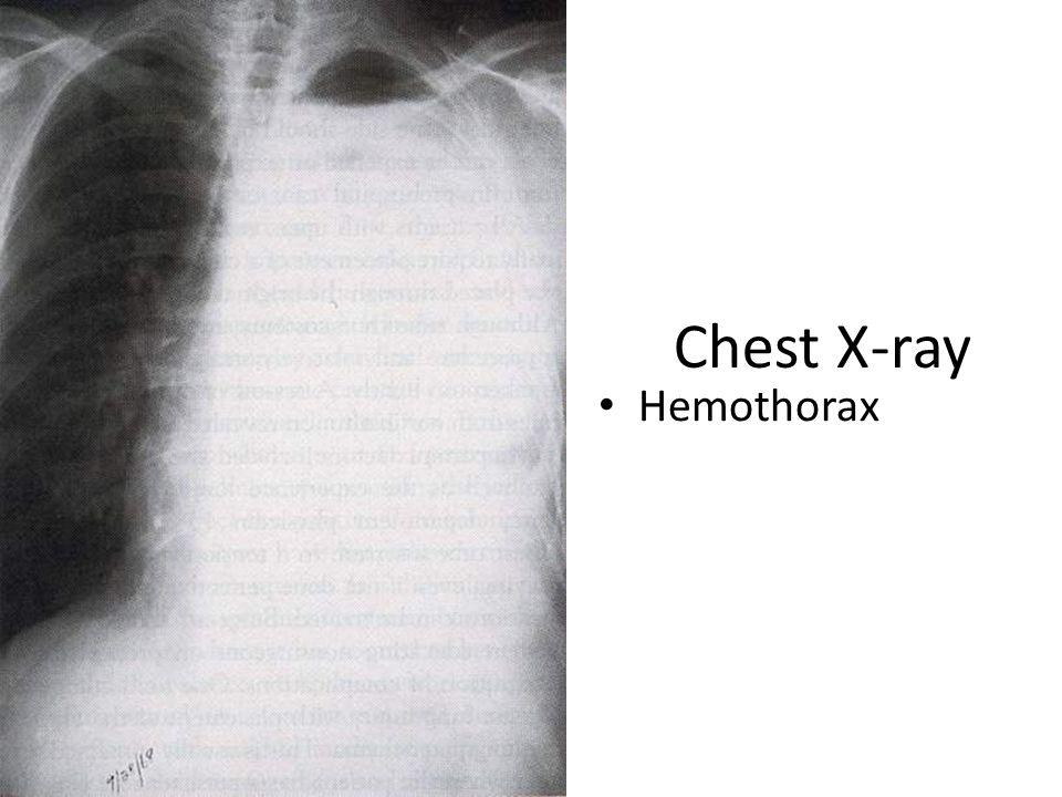 Chest X-ray Hemothorax