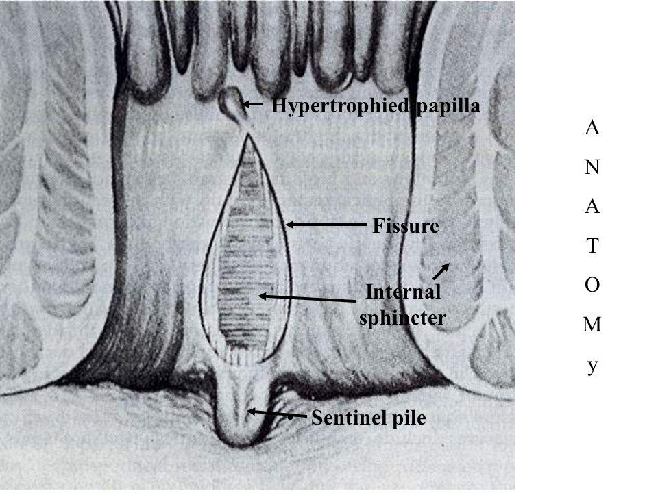Hypertrophied papilla