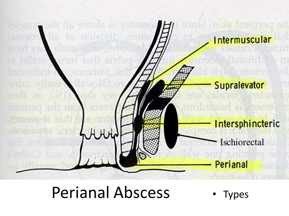 Ischiorectal Perianal Abscess Types