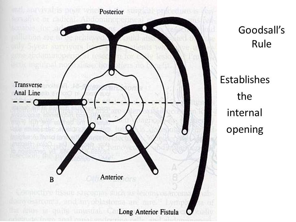 Goodsall's Rule Establishes the internal opening