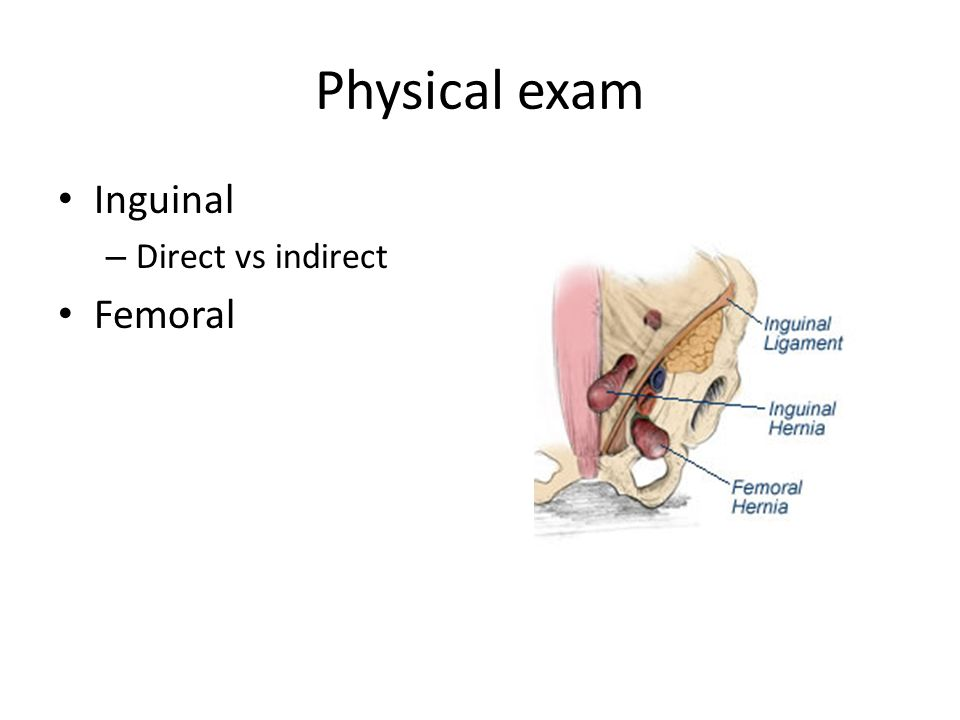 Physical exam Inguinal Direct vs indirect Femoral