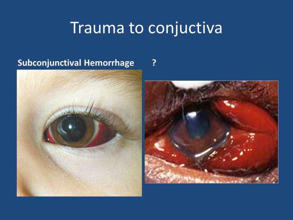 Trauma to conjuctiva Subconjunctival Hemorrhage